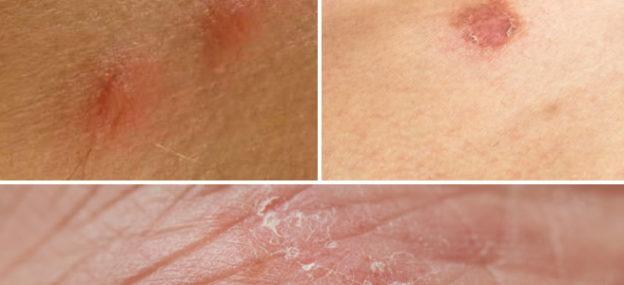 infezione della pelle fungina durante il trattamento del viso