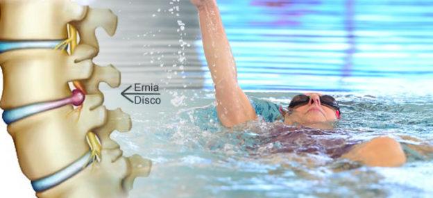 Benefici del nuoto per l'ernia del disco